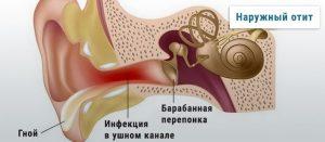 Зовнішній отит: від перших симптомів до повного лікування