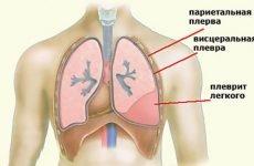ЛФК при плевриті: комплекс вправ і дихальна гімнастика