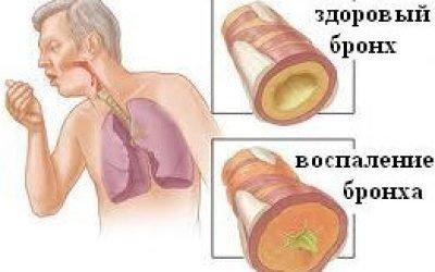 Хронічний бронхіт – причини, симптоми, лікування, загострення