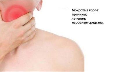 Ліки від мокротиння в горлі – які краще