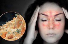 Гнійний фронтит: лікування, симптоми, причини
