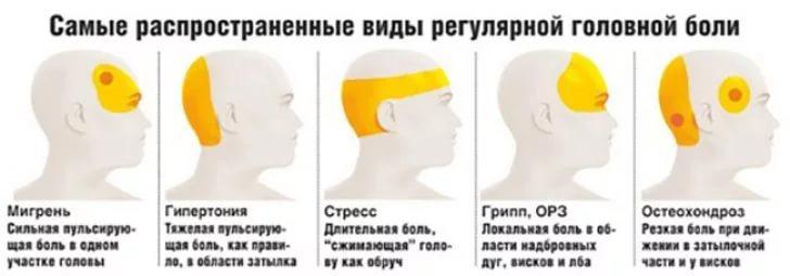 Как сделать сильную головную боль 618