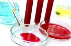 Аналіз крові при пневмонії: показники ШОЕ, ОАК, лейкоцитарної формули