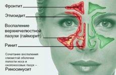 Риносинусит симптоми і лікування у дорослих