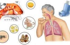 Алергічний гайморит: причини, симптоми, лікування, ускладнення та профілактика