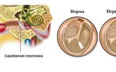 Перфорація барабанної перетинки: ознаки і лікування патології