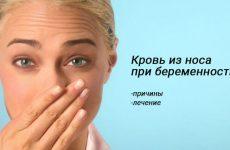 Носові кровотечі при вагітності – причини, лікування