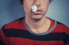 Соплі з кров'ю у дорослих та дітей – причини і лікування