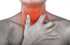 Ларингіт у дорослих – симптоми і лікування