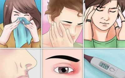 Риносинусит, що це таке: причини, симптоми, лікування
