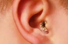 Кірки у вухах у людини – фото, причини, що робити, як лікувати