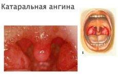 Катаральна ангіна: причини, симптоми, лікування