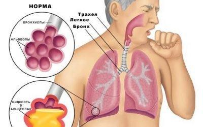 Лікування пневмонії у домашніх умовах – як правильно