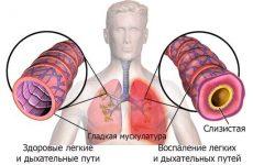 Запалення легенів у дорослих – перші ознаки, причини і лікування