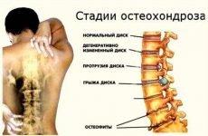 вправи при шийному остеохондрозі хребта