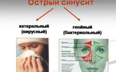 Катаральний синусит: лікування і симптоми набряково-катаральної форми