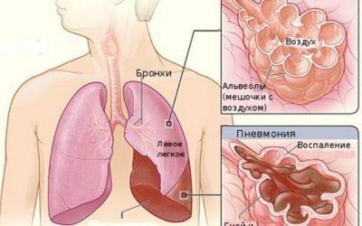Ускладнення і наслідки пневмонії під час і після хвороби