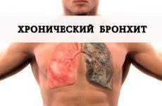 Симптоматика та лікування хронічного обструктивного бронхіту
