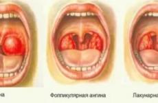 Чим лікувати горло в домашніх умовах