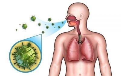 Гострий риносинусит: причини, симптоми, лікування, ускладнення