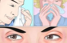 Алергічний синусит у дорослих і дітей: причини, симптоми, лікування