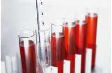 Чи можна здавати кров при застуді – і як правильно це робити