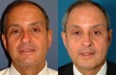 Викривлення носової перегородки – симптоми, як проводять операцію