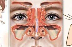 Хронічний риносинусит: симптоми, лікування, ускладнення