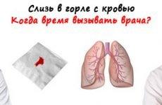 Слиз в горлі з кров'ю – причини і методи лікування