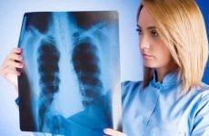 Чи можна померти від пневмонії? Так є ймовірність летального результату