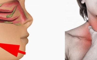 Багато слизу в горлі – причини, лікування
