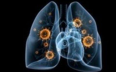Вірусна пневмонія – симптоми, якими ліками лікувати