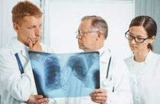Діагностика запалення легенів – як лікар визначає хвороба