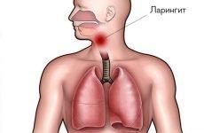 Гострий ларингіт: симптоми і лікування хвороби