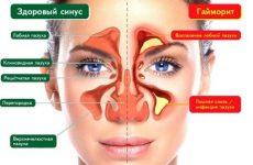 Верхньощелепної синусит: хронічна і гостра форми. Симптоми і лікування верхньощелепного синуситу