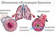 Обструктивний бронхіт: у дорослих і дітей: причини, симптоми, лікування