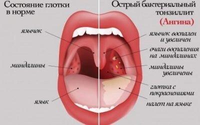 Постійно червоне горло – лікування за порадами доктора Комаровського