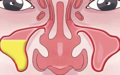 Грибковий синусит: симптоми і лікування захворювання