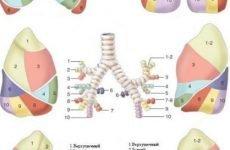 Полисегментарная пневмонія: що таке, форми, симптоми, лікування