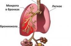 Причини мокротиння в горлі – звідки з'являється, чому і що робити