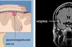 що таке кіста головного мозку, симптоми і лікування