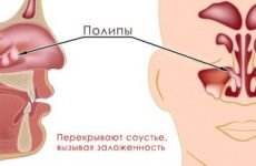 Кістозний синусит: симптоми і лікування захворювання
