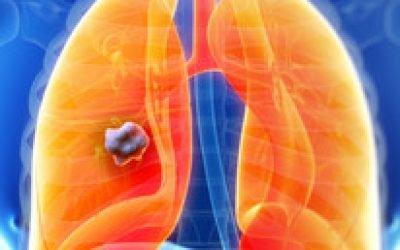 Параканкрозная пневмонія – що це таке і її особливості