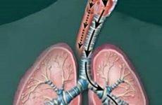 Аспіраційна пневмонія: причини, симптоми і лікування