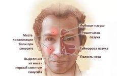Що таке синусит: симптоми, причини, лікування та види синуситів