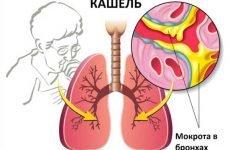 Мокрота при пневмонії: якого кольору, аналізи, характеристики