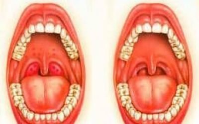 Прищі на задній стінці – причини, якими ліками лікувати