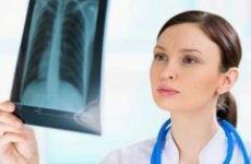 Жорстке дихання в легенях – що це таке, хрипів немає, як лікувати
