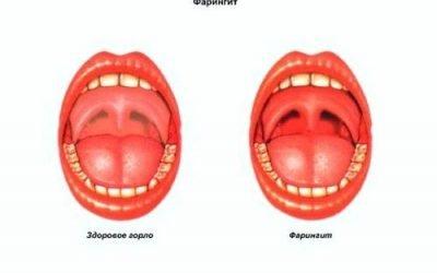 Червона задня стінка горла: причини і лікування