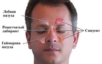 Чим відрізняється синусит від гаймориту